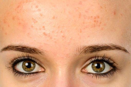 rencontre quelqu'un avec l'acné sévèreen ligne datant Magyar