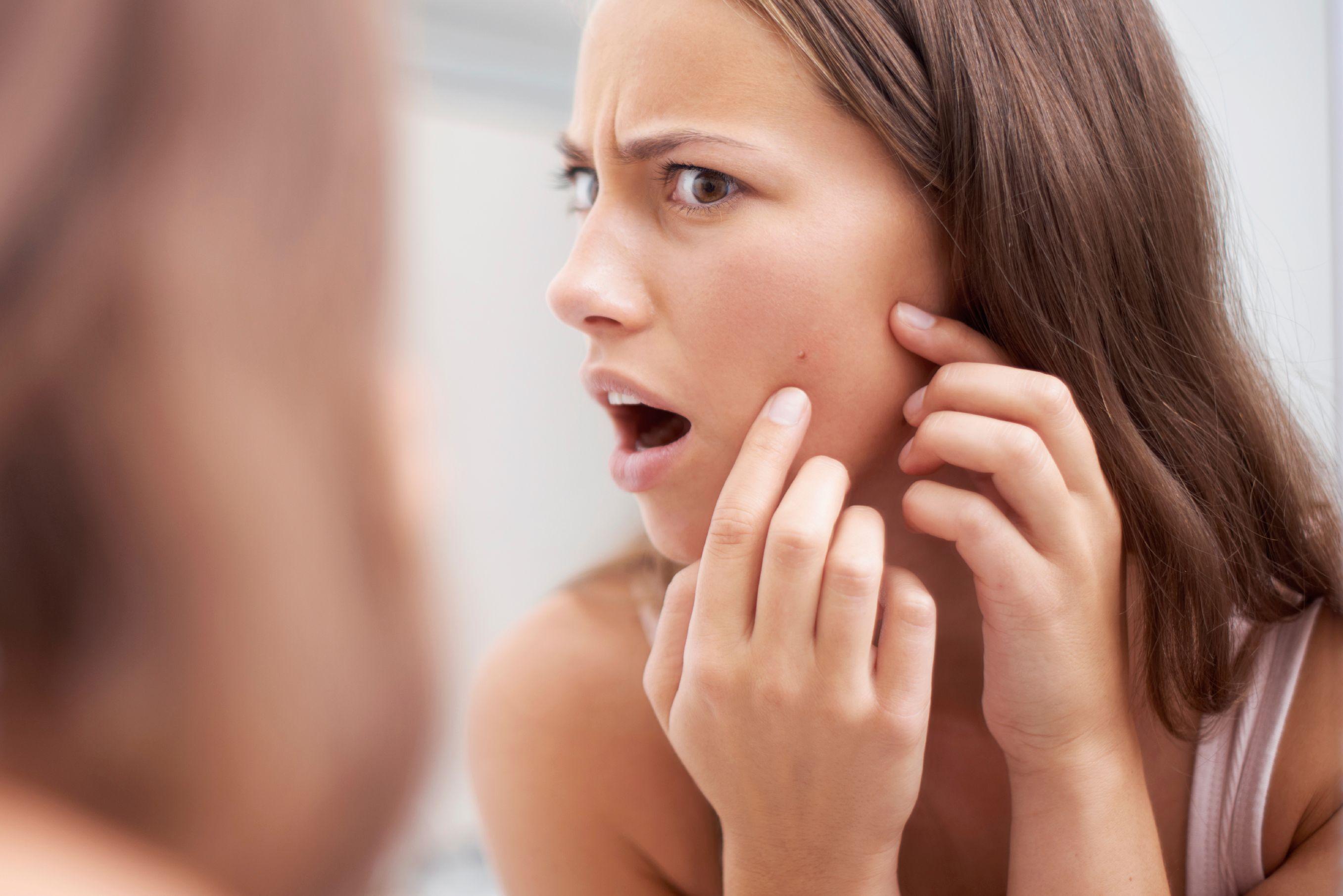 800748998ad Acné   les traitements efficaces contre l acné - Doctissimo