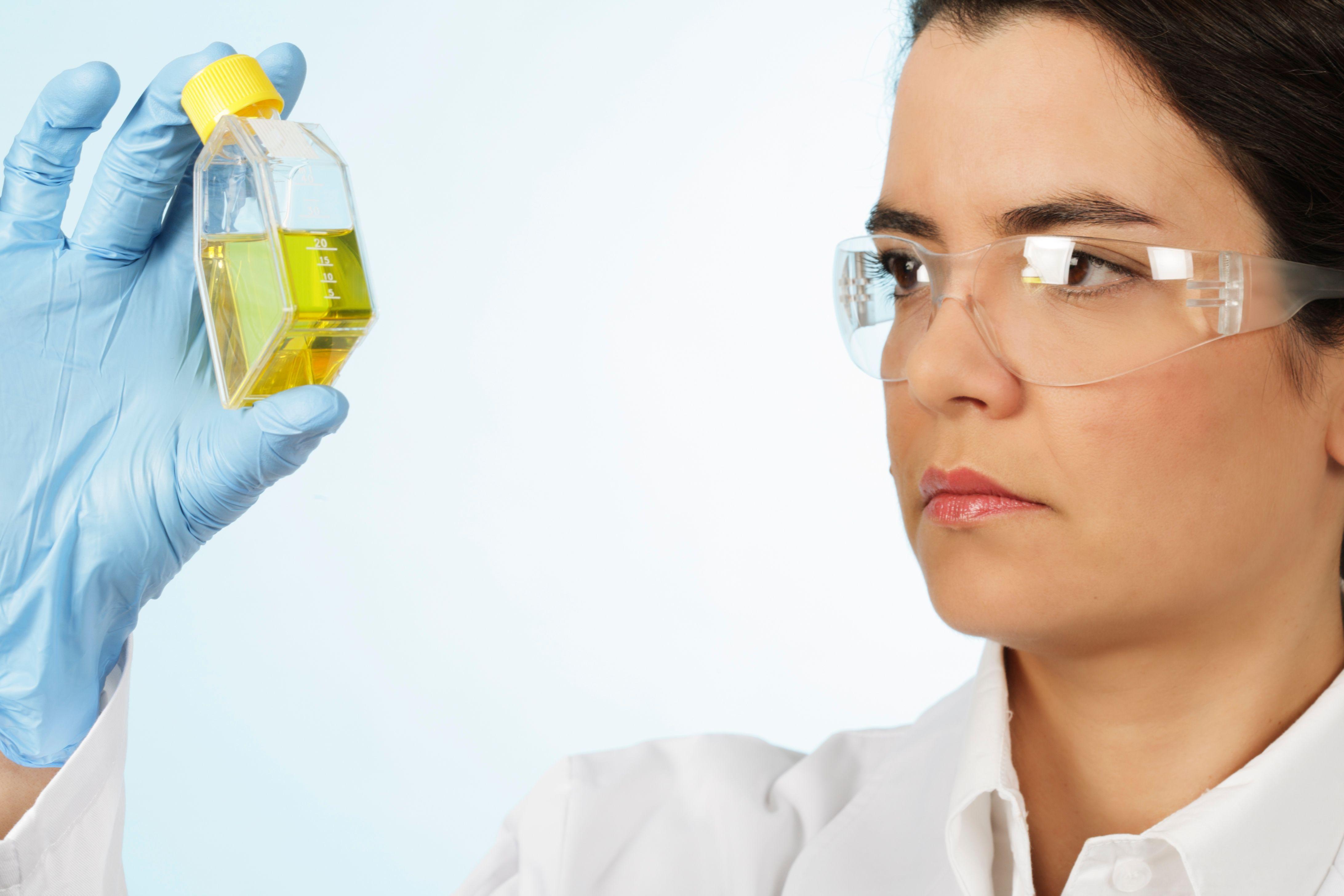 Clairance de la créatinine - Dosage sanguin et urinaire..