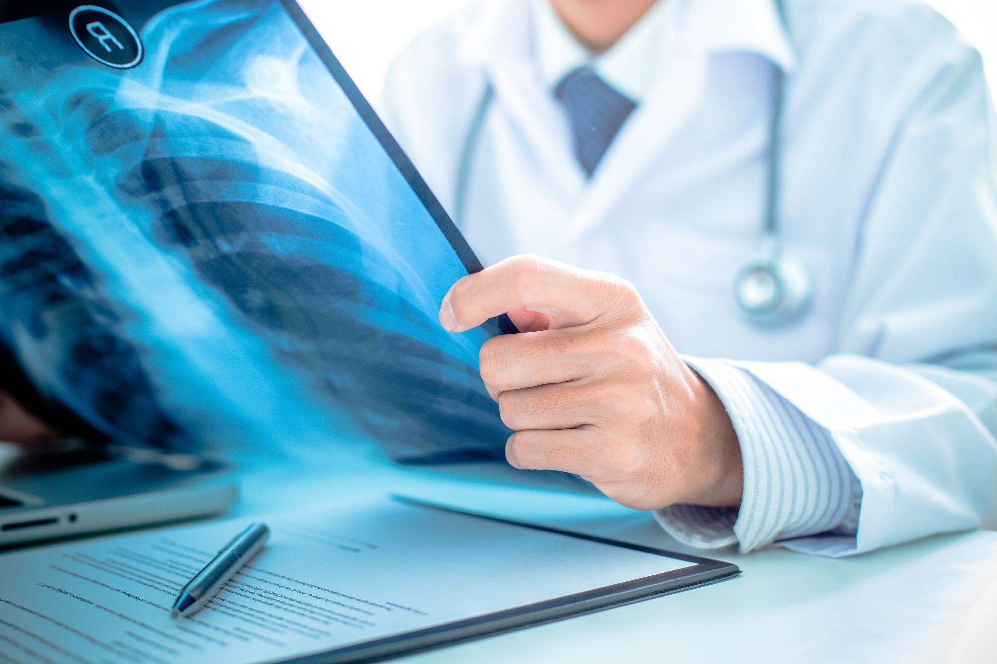 Asthme spécialiste - Consultation asthme - Doctissimo 6d8719a6c8d1