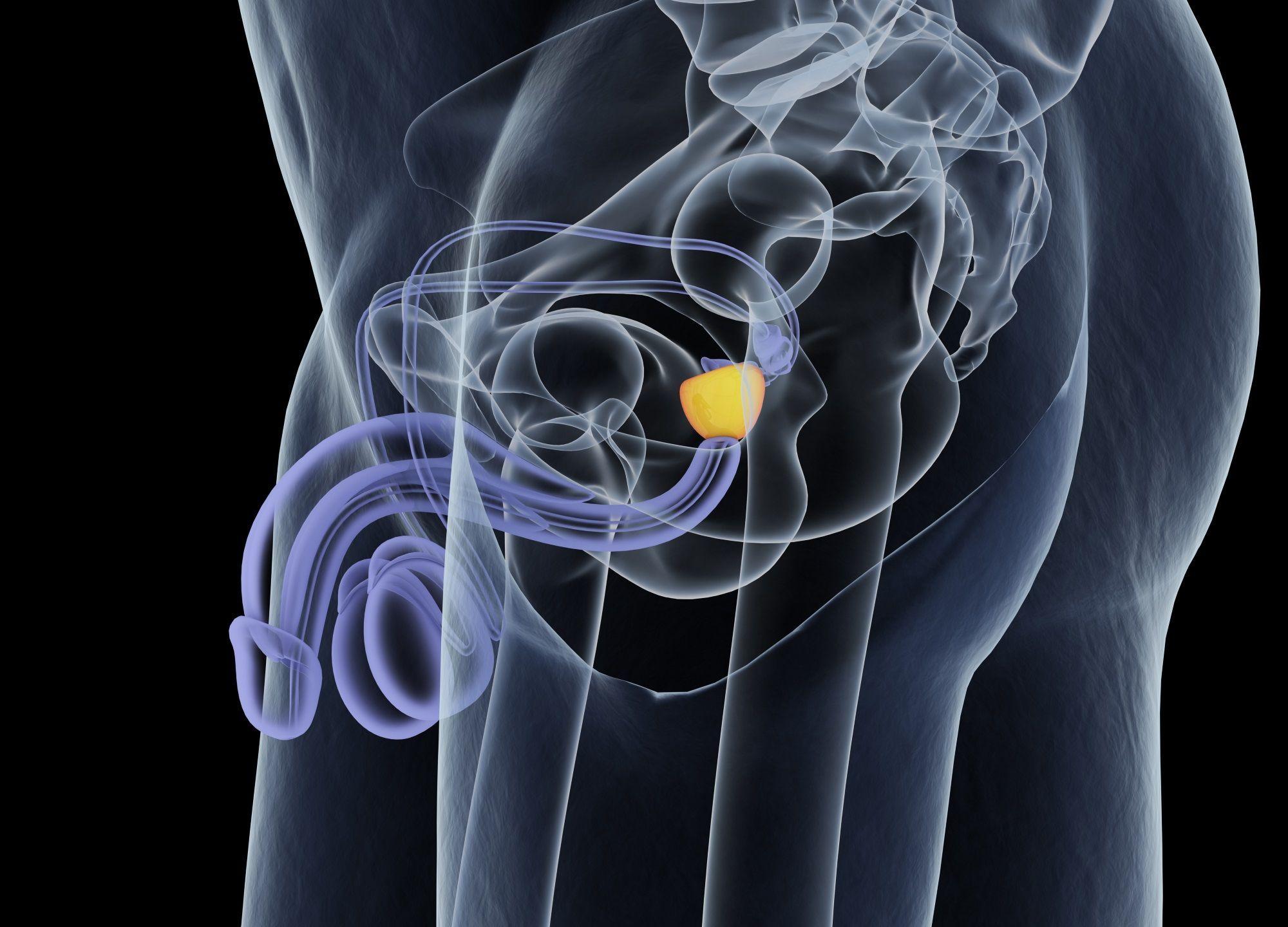 radiothérapie prostate après ablation