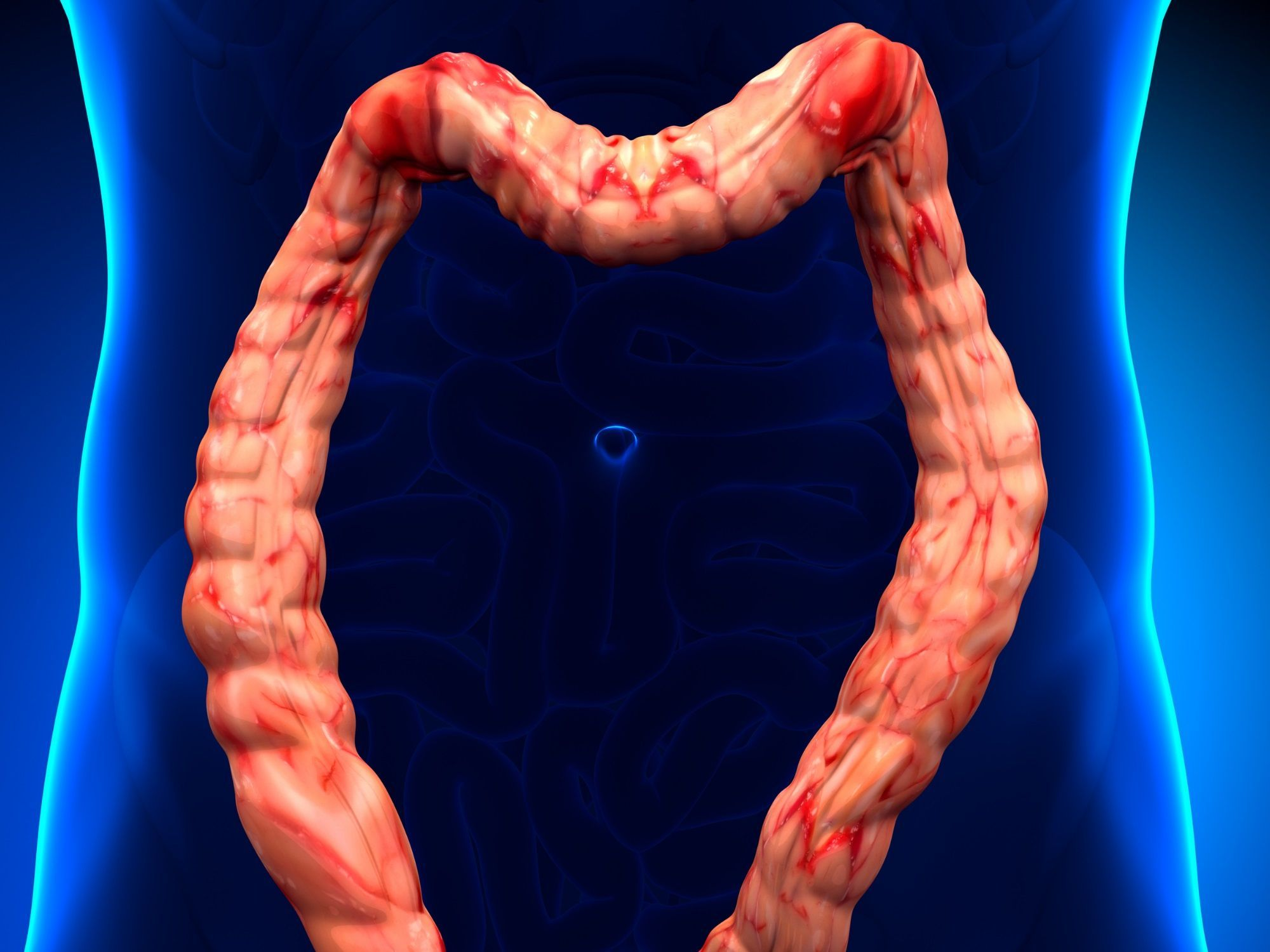 Dolichocôlon - Symptômes et traitement - Doctissimo