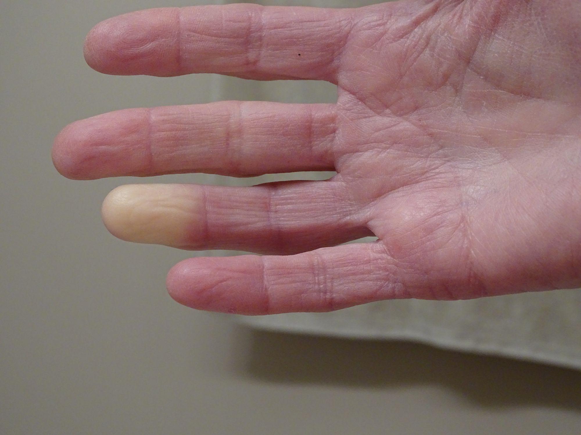 syndrome raynaud symptomes