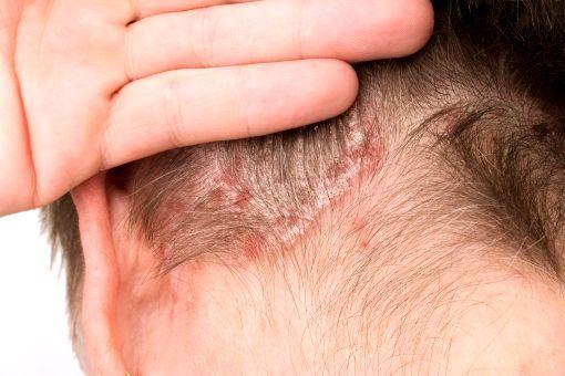 eczema pli interfessier