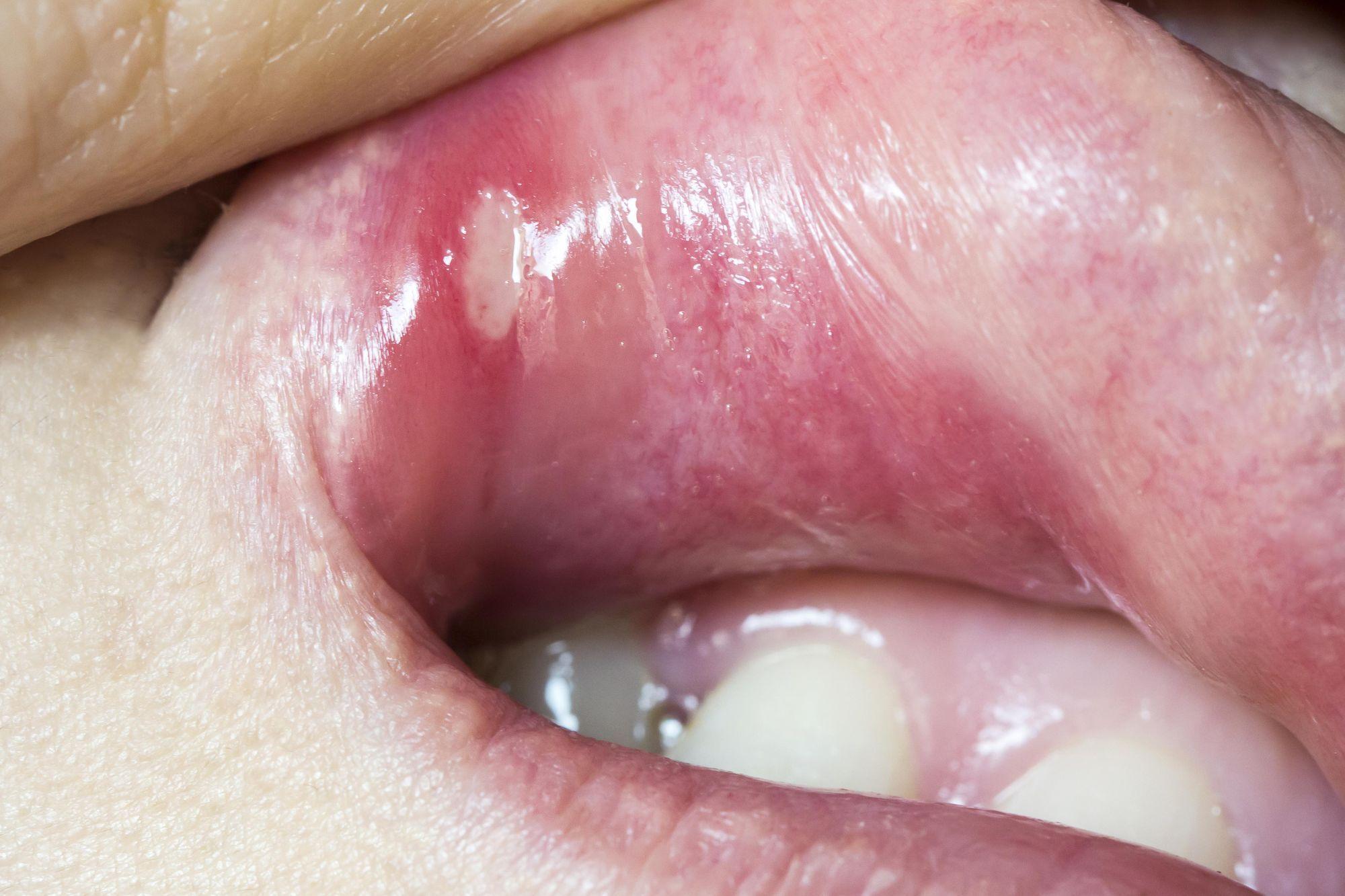 bouton de fievre bouche