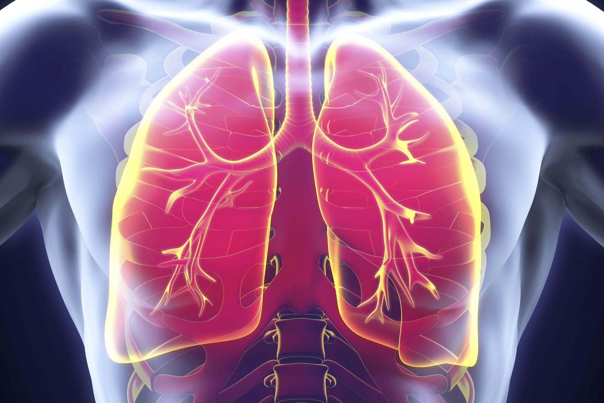 Qu'est-ce qu'une infection pulmonaire ? - Doctissimo