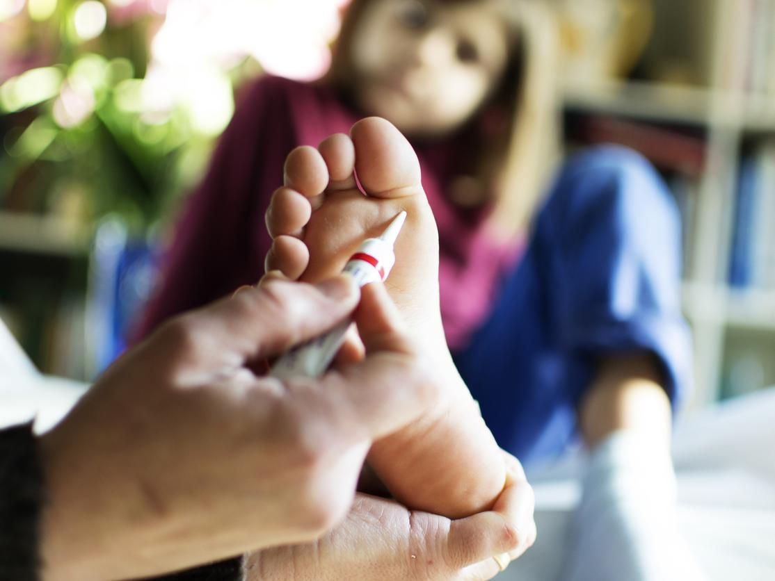 Verrue plantaire : causes, symptômes et traitements..