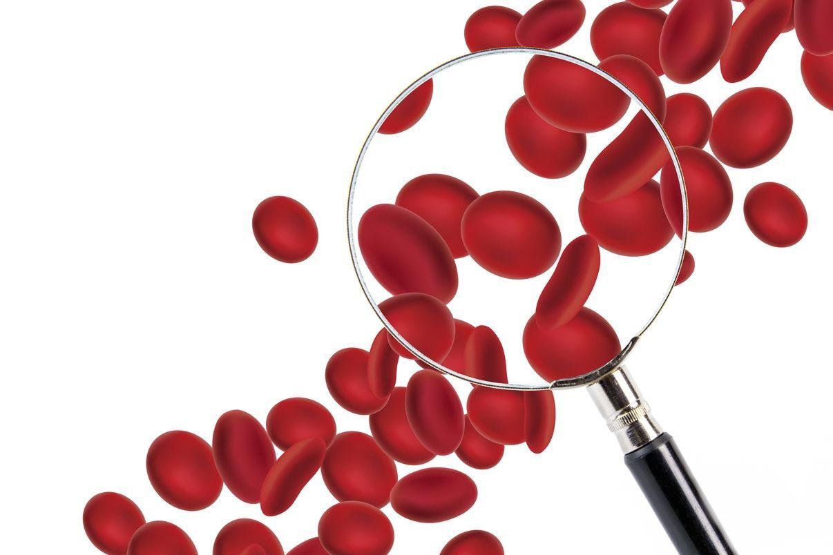 Anémie : 8 conseils pour corriger une anémie ferriprive - Doctissimo