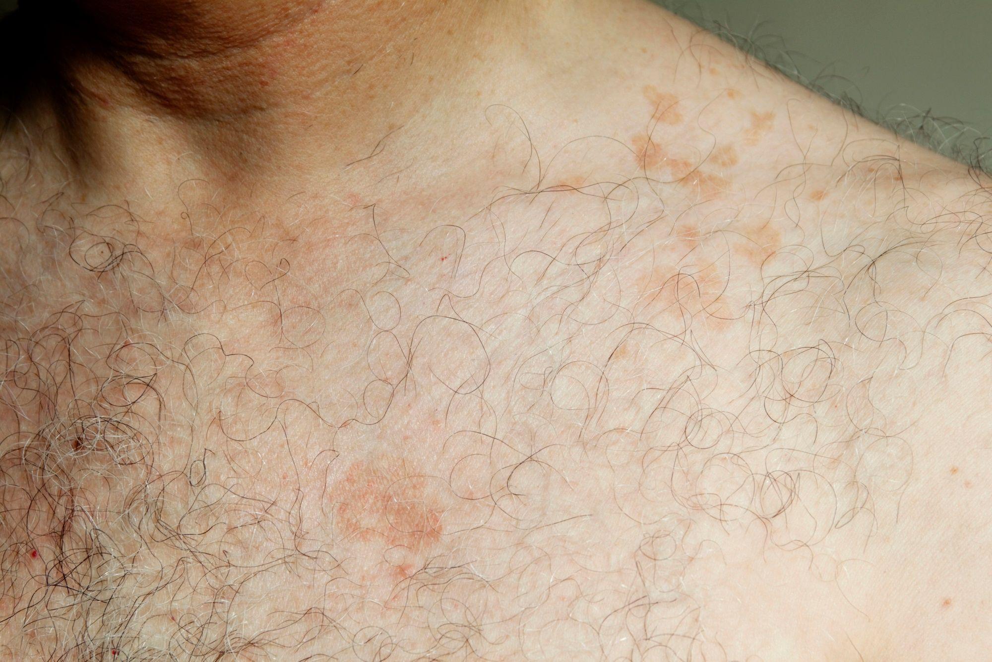 traitement contre les champignons sur la peau