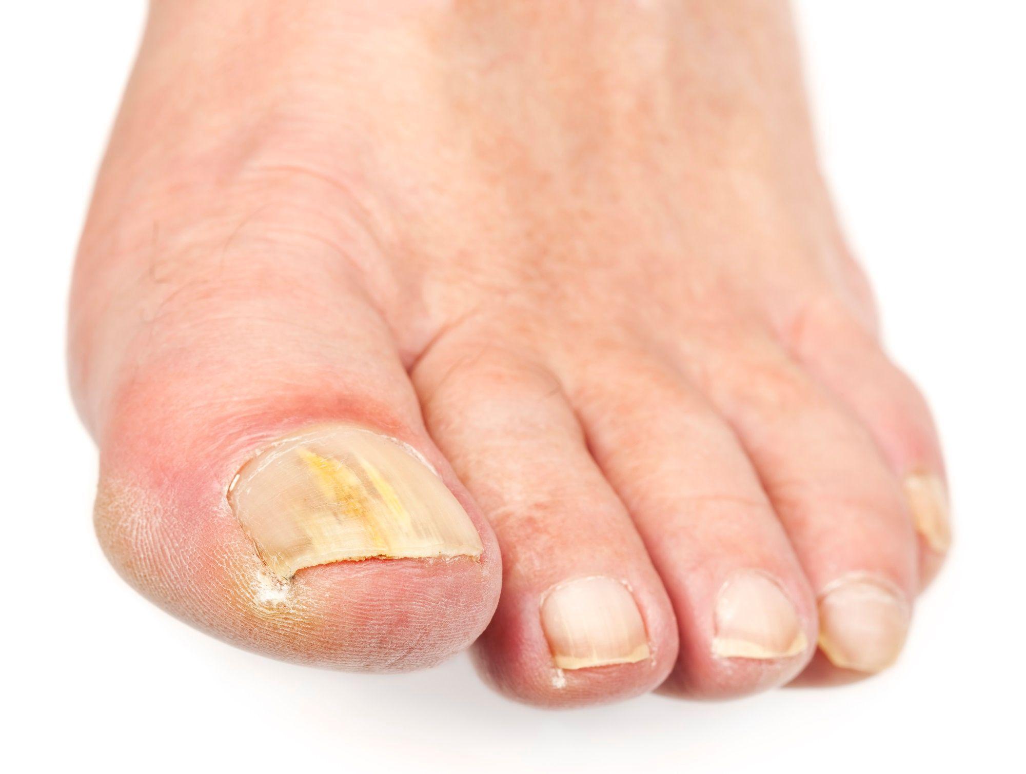 Cause mycose ongle pied