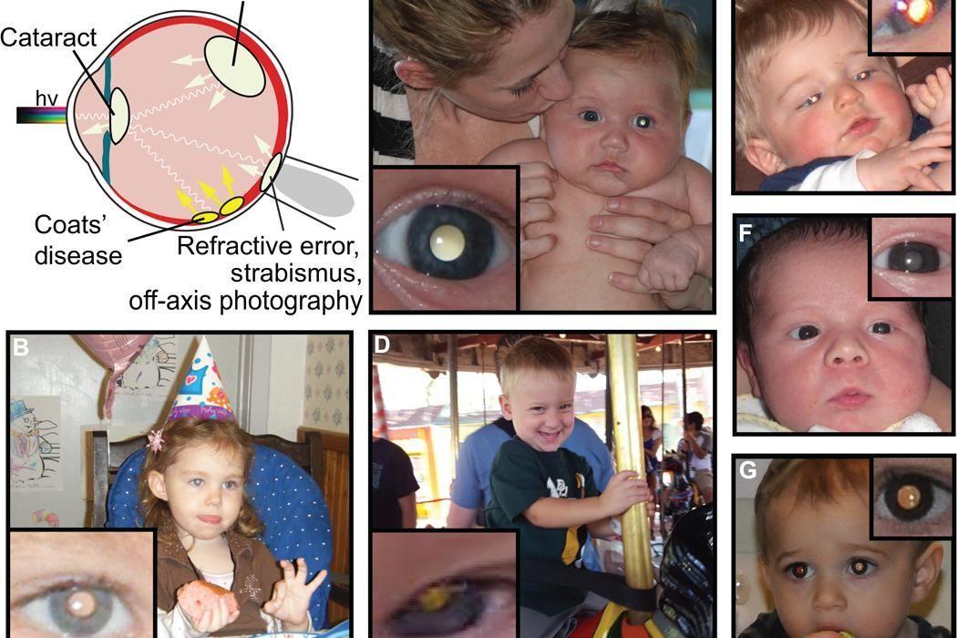Rétinoblastome: une appli détecte les premiers signes d'un cancer de l'oeil chez l'enfant