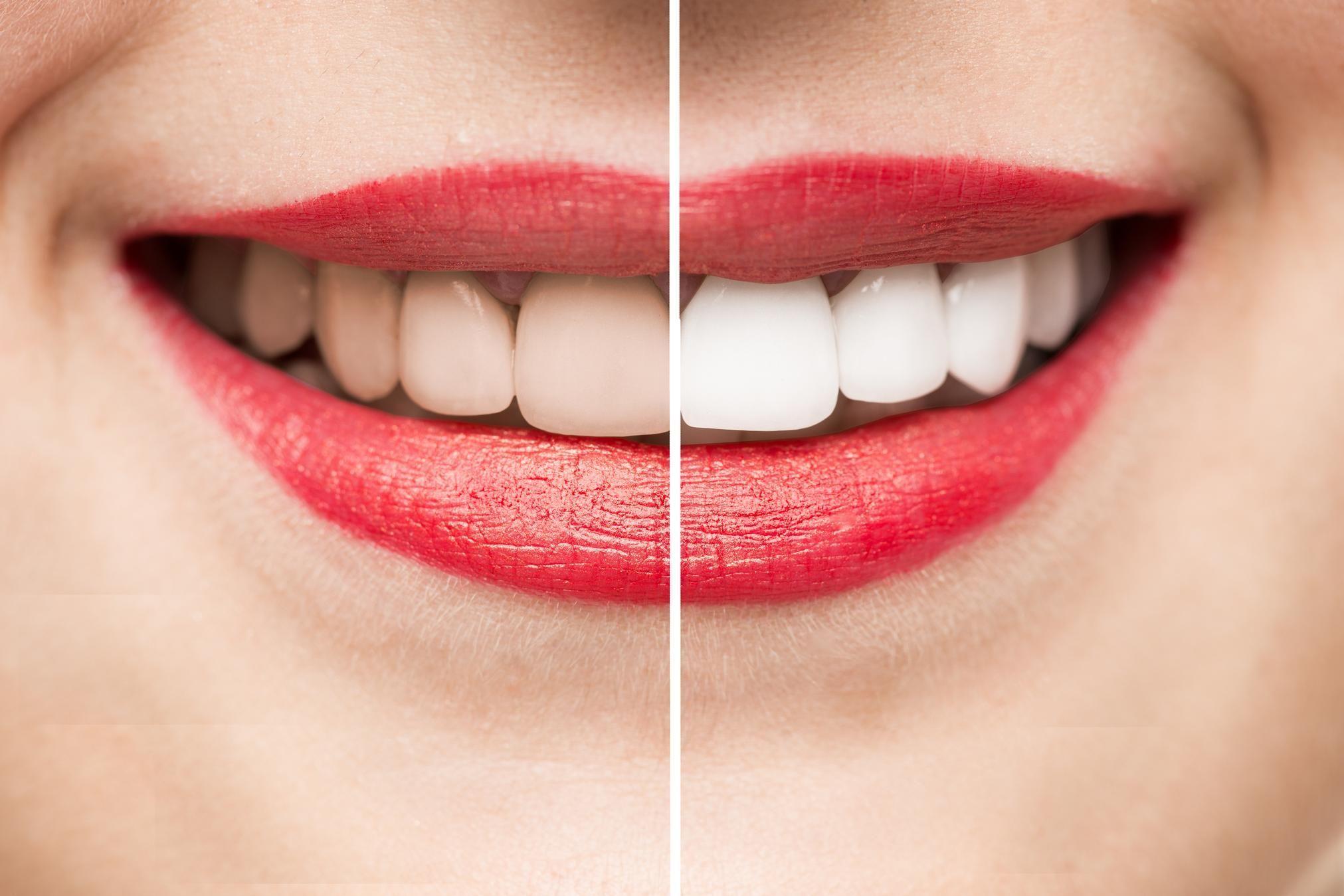 bd3fac59ae3a14 Facettes dentaires   prix, durée de vie, entretien - Doctissimo