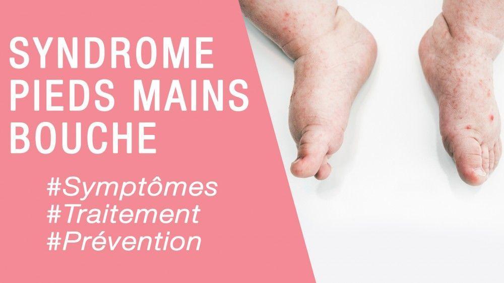 syndrome pied main bouche femme enceinte