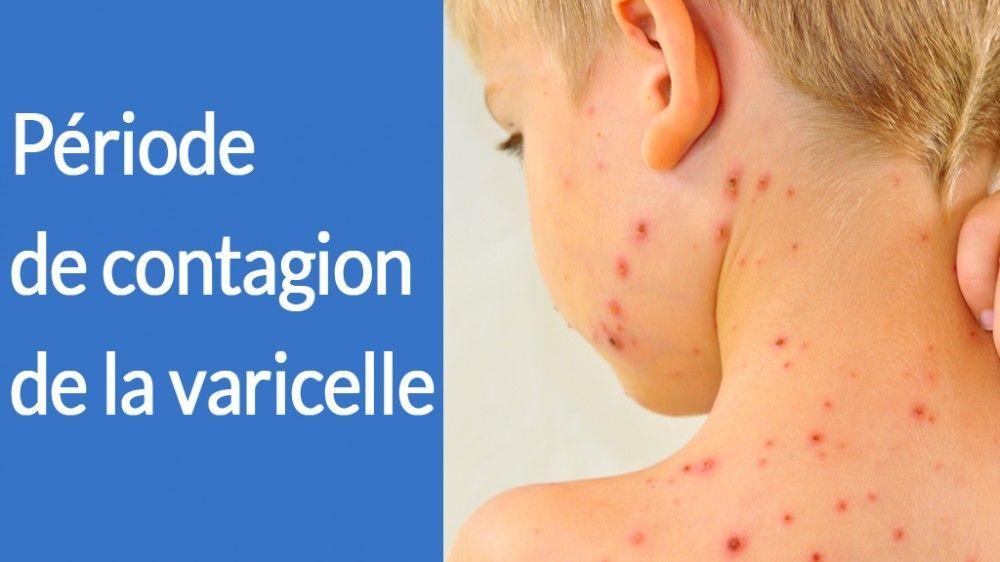 Période de contagion de la varicelle – Traitement de la varicelle