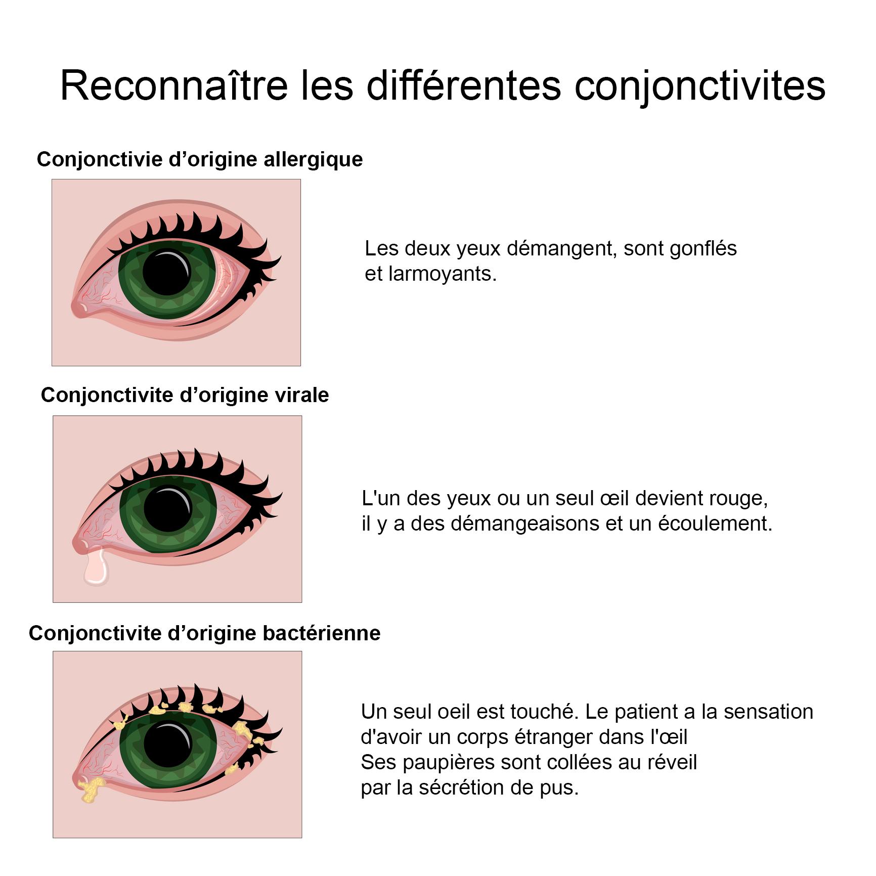Bacterie yeux lentilles. Bacterii bune si rele,