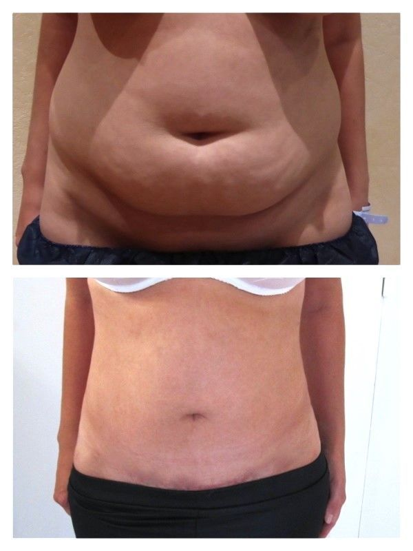 Comment perdre durablement la graisse du ventre ?