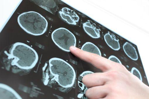 Accidents vasculaires cérébraux ischémiques