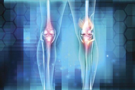 Arthrite : causes, symptômes, traitements de l'arthrite ...