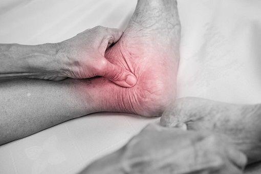 pas cher volume grand énorme inventaire Arthrose du pied et de la cheville : causes, symptômes et ...