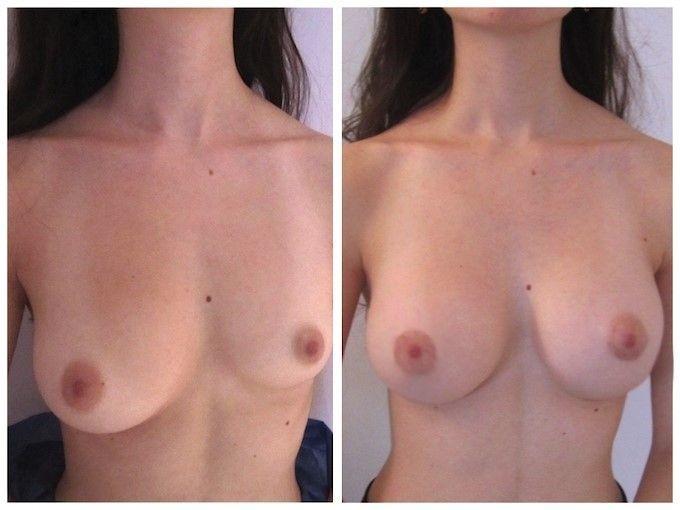 augmentation seins 3