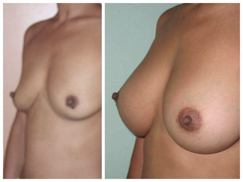 augmentation seins1