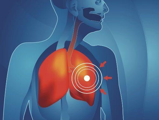 Cancer secondaire du poumon