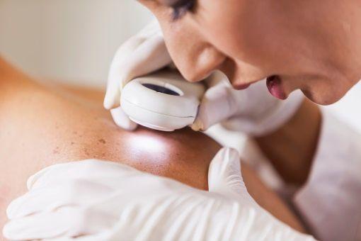Les Cancers De La Peau Symptômes Et Traitement Doctissimo