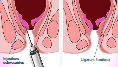 Chirurgie hémorroïdes