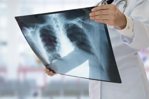 Dépistage tuberculose