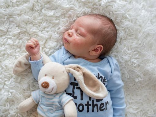 soigner griffure visage bebe