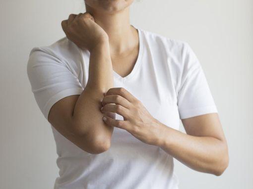 eczema-de-contact-wd-510