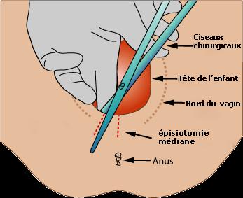 episiotomie