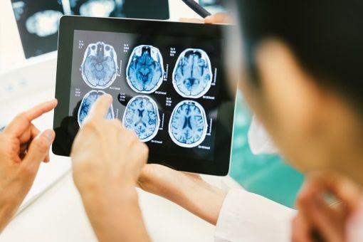 examen cerveau