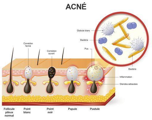 Acné Et PhotothérapieUn Traitement De Espoir Le L'acné Pour qUzSVpM