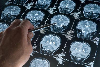Alzheimer : l'espoir d'un vaccin