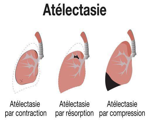 atelectasie