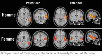 brainscans