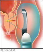 cancer-prostate-image002