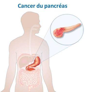 Cancer_pancreas-2.jpg