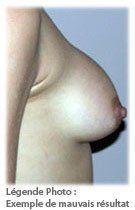 Chirurgie esthétique - Mauvais résultat
