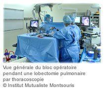 chirurgie-moins-traumatisante-cancer-poumon-02