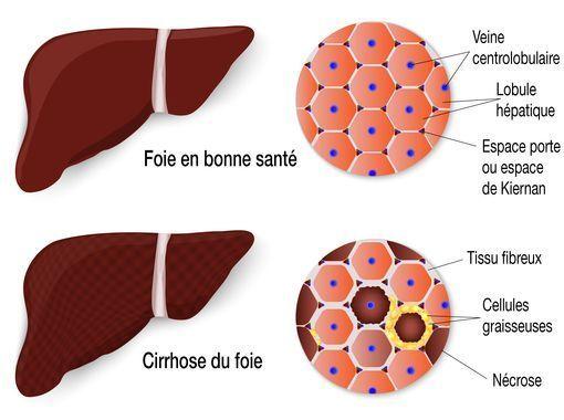 cirrhose foie
