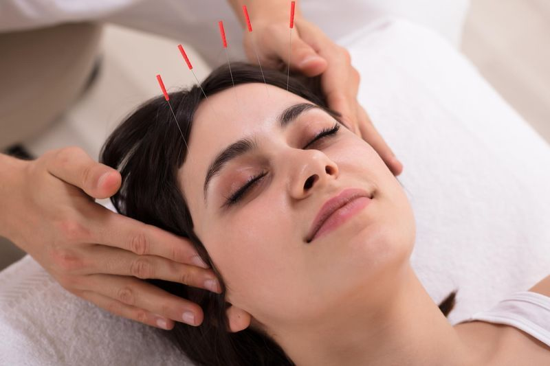 Comprendre l'acupuncture