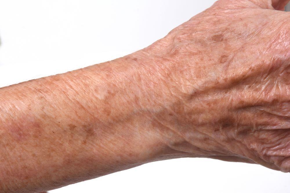 Dermatoporose