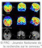 epilepsie-imagerie