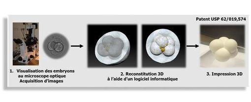 foetus-3D