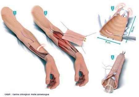Greffe de trachée artificielle autologue