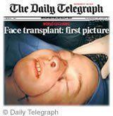 Greffe visage
