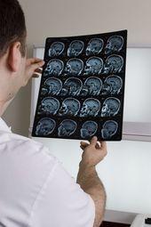 IRM_cerveau2.jpg