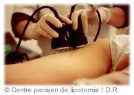 La lipotomie